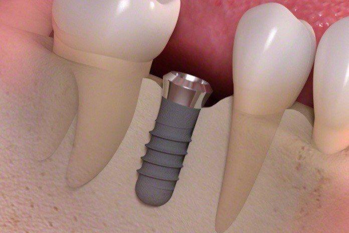implant (małe)