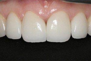Licowki porcelanowe zalozone w klinice stomatologicznej w poznaniu