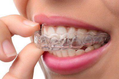 clear-aligner-czyli-niewidoczne-nakladki-ortodontyczne-na-zeby-zakladane-przez-ortodonte-w-gabinecie-stomatologicznym-w-kinice-stomatologicznej-w-poznaniu