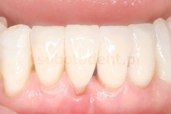 efekt-zalozenia-bialych-licowek-porcelanowych-w-gabinecie-stomatologicznym-w-klinice-stomatologicznej-w-poznaniu