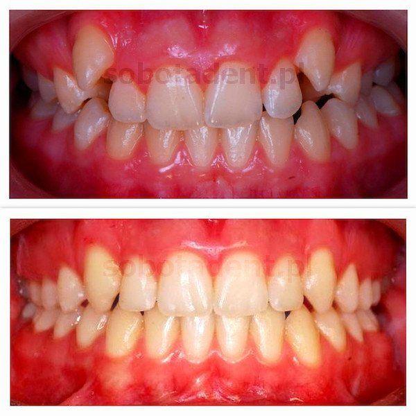 efekty-leczenia-ortodontycznego-po-leczneniu-przez-ortodonte-w-gabinecie-stomatologicznym-kliniki-stomatologicznej-w-poznaniu