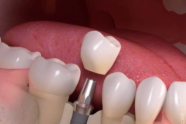 korony-porcelanowe-na-implantach-cementowane-w-gabinecie-stomatologicznym-kliniki-stomatologicznej-w-poznaniu