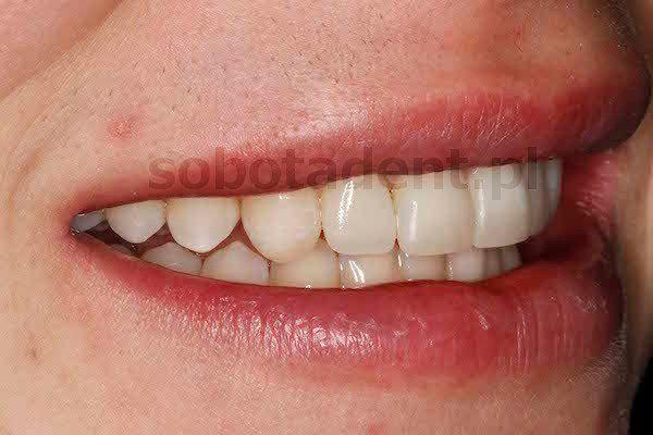 licowki-kompozytowe-zalozone-w-gabinecie-stomatologicznym-kliniki-stomatologicznej-w-poznaniu