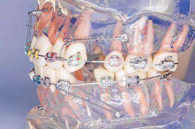 miniimplanty-ortodontyczne-stosowane-w-ortodoncji-w-gabinecie-stomatologicznym-kliniki-stomatologicznej-w-poznaniu