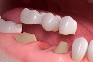 mosty-porcelanowe-bedace-alternatywa-dla-implantow-zebowych-oferowane-sa-w-gabinecie-stomatologicznym-kliniki-stomatologicznej-w-poznaniu