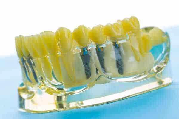 odbudowa-kosci-przed-zabiegiem-chirurgicznym-przeprowadzana-przez-chirurga-stomatologa-w-gabinecie-stomatologicznym-kliniki-stomatologicznej-w-poznaniu