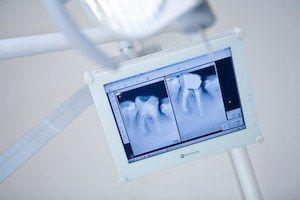 powtorne-leczenie-kanalowe-w-gabinecie-stomatologicznym-kliniki-stomatologicznej-w-poznaniu