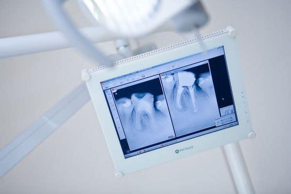 powtorne-leczenie-kanalowe-wykonywane-przez-endodonte-w-gabinecie-stomatologicznym-kliniki-stomatolokicznej-w-poznaniu