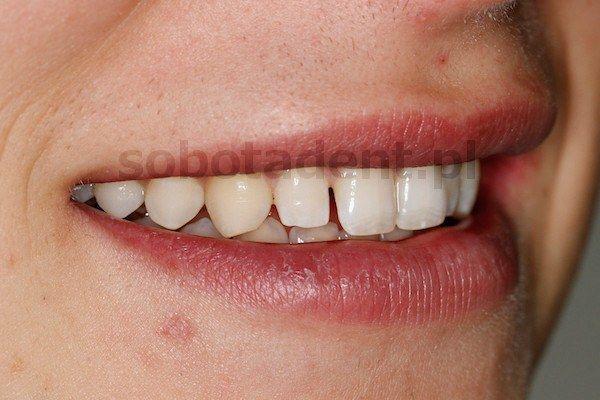 przed-zalozeniem-licowek-kompozytowych-w-gabinecie-stomatologicznym-w-klinice-stomatologicznej-w-poznaniu