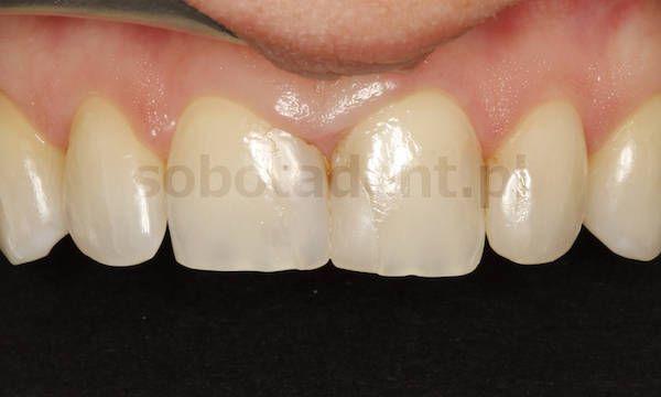 przed-zalozeniem-licowek-porcelanowych-w-gabinecie-stomatologicznym-kliniki-stomatologicznej-w-poznaniu