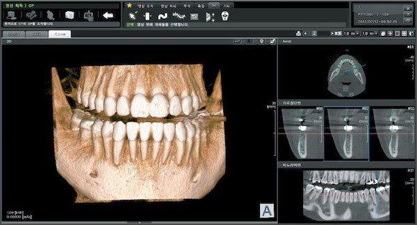 tomograf-komputerowy-firmy-papaya-to-najnowoczesniejszy-sprzet-stomatologiczny-w-klinice-stomatologicznej-w-poznaiu