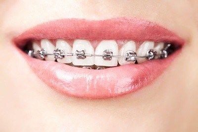 stomatolog-ortodonta-zaklada-aparat-ortodontyczny-w-gabinecie-stomatologicznym-kliniki-stomatologicznej-w-poznaniu