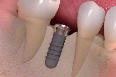 w-naszej-klinice-stomatologicznej-implanty-zebow-wszczepia-doswiadczony-implantolog